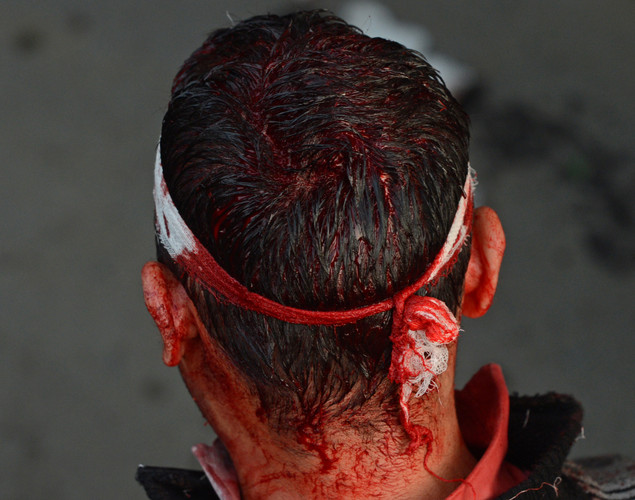 The bloodied head of a Kashmiri Shiite Muslim is seen as he performs a ritual of self-flagellation with knives during a religious procession held on the fourth day of Ashura, which remembers the slaying of the Prophet Mohammed's grandson in southern Iraq in the seventh century, in Srinagar.
